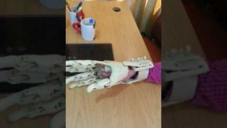 prosthetic Hand by Tareq-RiTS