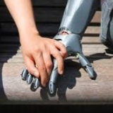 3D printed Prosthetic  طباعة ثلاثية الابعاد لاطراف صناعية